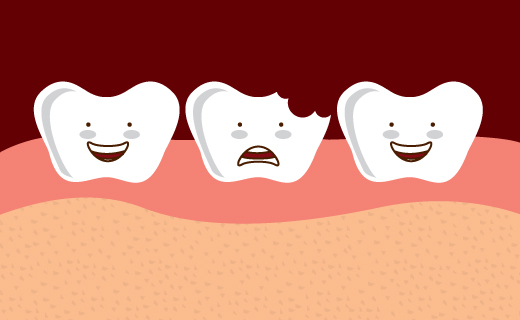 dca-blog_chipped-tooth-sad-illustration