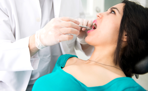 dca-blog_tooth-extraction-female-brunette