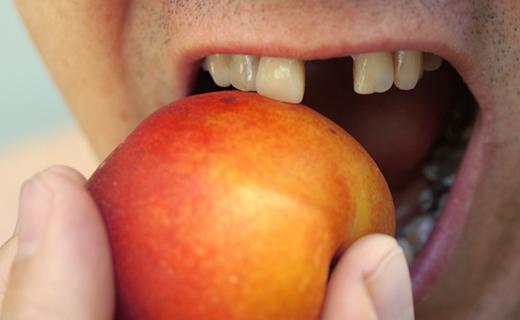 Dental Health and Dentures