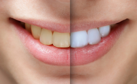 dca-blog_teeth-whitening-tooth-comparison