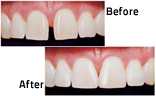 dental-veneers-img