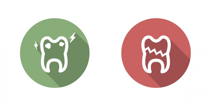dca_blog_chipped-teeth-725x381